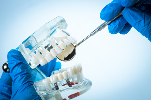 Dental Implants and Oral Surgery